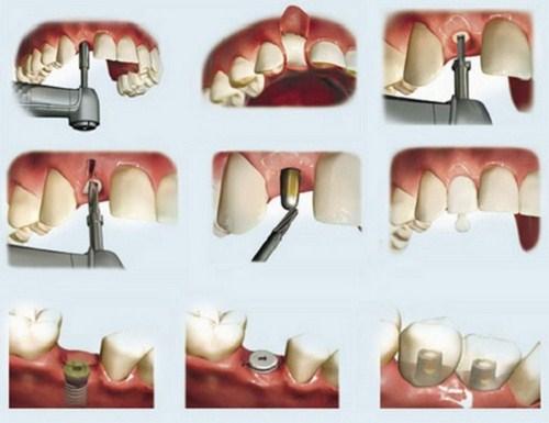 Giá Cấy Ghép Implant Tốt Nhất Hiện Nay -1