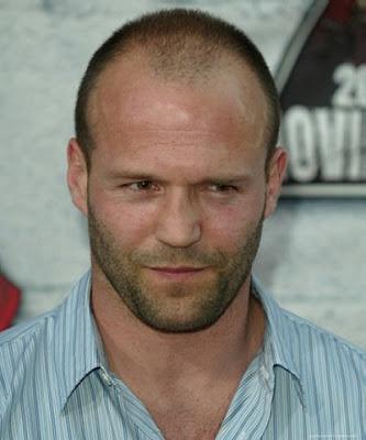 balding men's hairstyles