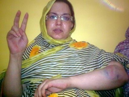 تعرض الناشطة الحقوقية الصحراوية سلطانة خيا للمضايقة والتعنيف بمدينة بوجدور المحتلة