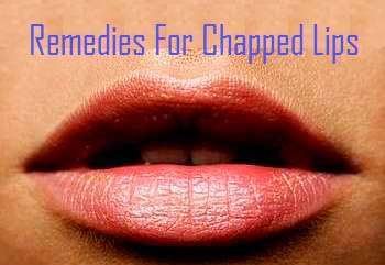 Chapped and Cracked Lips