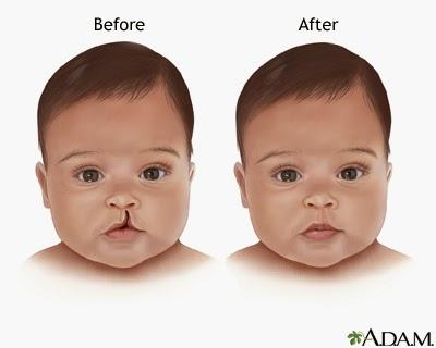 Operasi Bibir Sumbing Pada Bayi