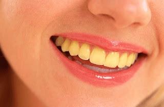Cara-Nak-Putihkan-Gigi-Yang-Kuning
