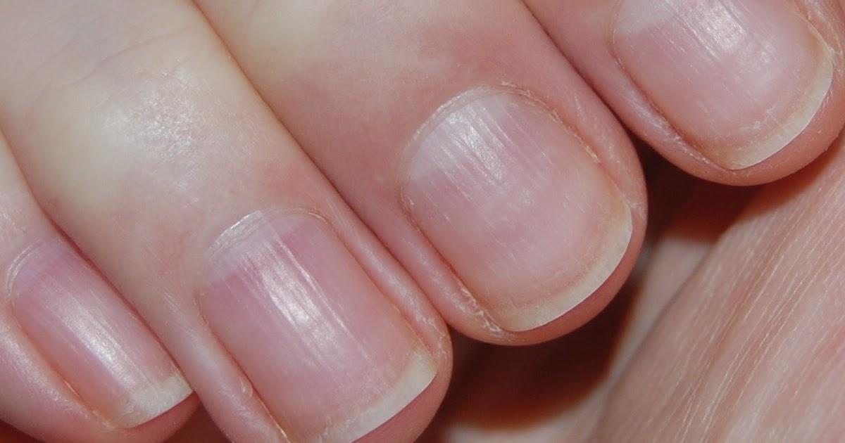 Lipstick Fridays - Beauty Blog: Nail Care - Nail Ridges
