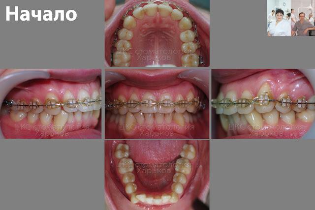 Зубы пациента в начале лечения у второго ортодонта