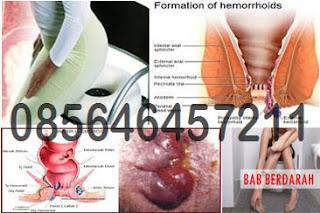 Obat Berak atau BAB Berdarah Tanpa Rasa Sakit