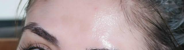 manchas de pele, clareamento, rotina de pele, ácido kójico, vitamina c , ácido hialurônico, melasma inicial