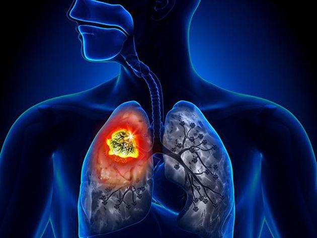 Ações de prevenção e combate à tuberculose iniciam nesta segunda (12) em Delmiro Gouveia