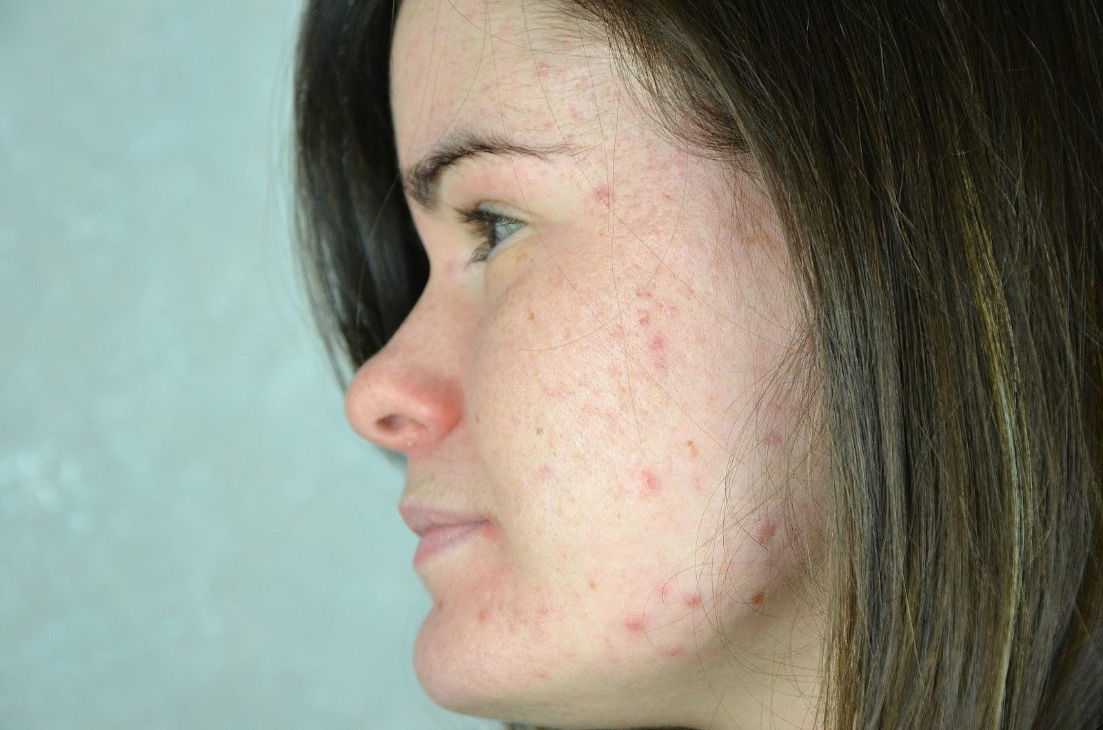 acné joue gauche