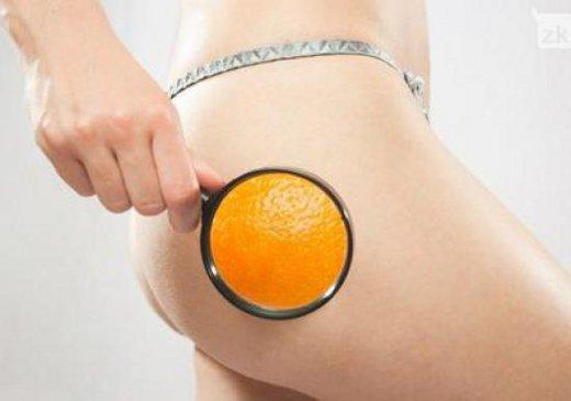 Como Tratar e Ter menos Celulite