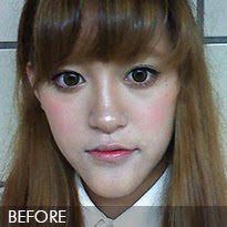 짱이뻐! - Finally Get Rid of My Chin With Korean Best Face Contouring