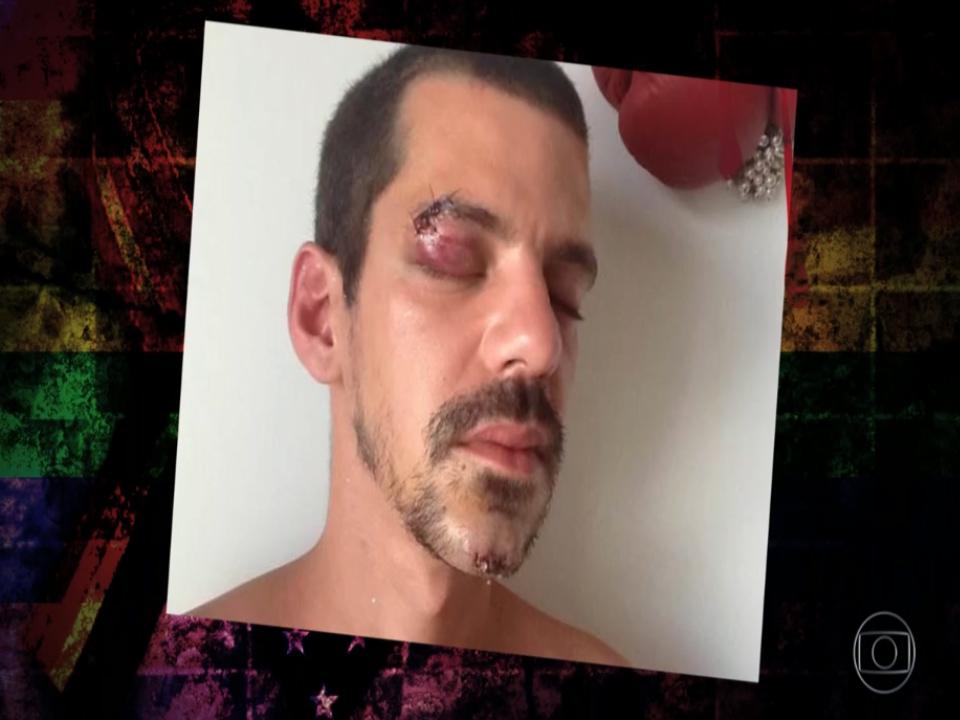 Uma pessoa LGBT morre de forma violenta no Brasil a cada 28 horas