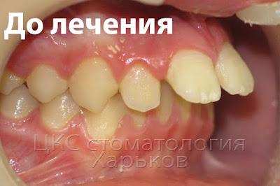 Разъехавшиеся зубы