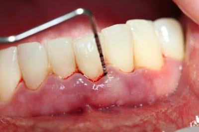 Viêm chân răng có nguy hiểm không?