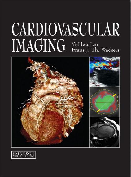 Liu - Cardiovascular Imaging [PDF]