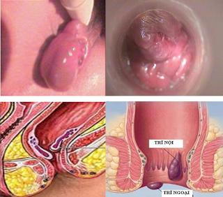 Triệu chứng của bệnh trĩ nội - ngoại - hỗn hợp