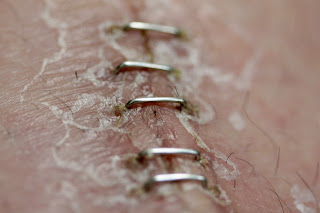 surgical staples incision