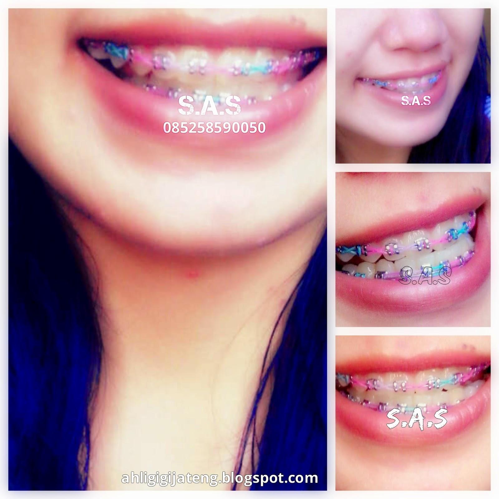 Foto Senyum Cewek Berbehel Berkawat Gigi Cantik S A