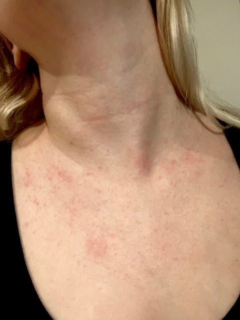 A mystery pregnancy rash on my chest