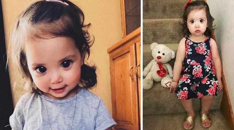 Ένα κοριτσάκι έχει ασυνήθιστα μεγάλα μάτια  λόγω μιας σπάνιας γενετικής δυσλειτουργίας
