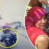 Patah tangan kiri tersepit di rim tayar motosikal