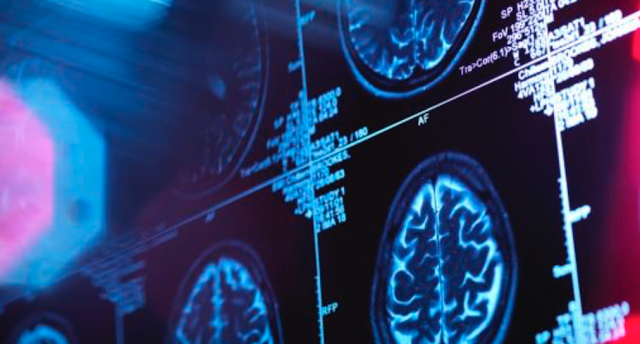 Microsoft health unit is a 'multi-billion dollar business,' medical chief says