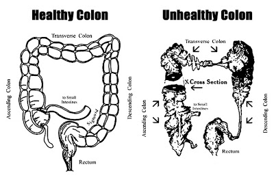 Healing, Anti-Aging, and Yoga: Colon cleansing the best
