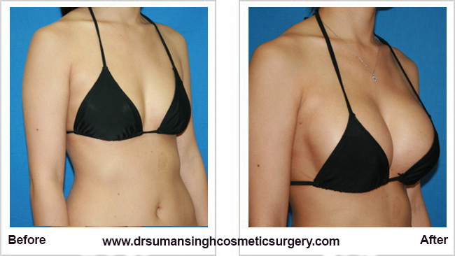 Augmentation breast transumbilical