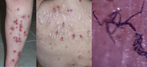 Morgellons disease could be the infection with Borrelia burgdorferi