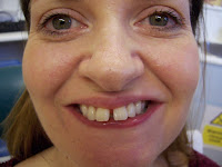 Sam before Invisalign treatment at Appledore Dental Clinic Milton Keynes