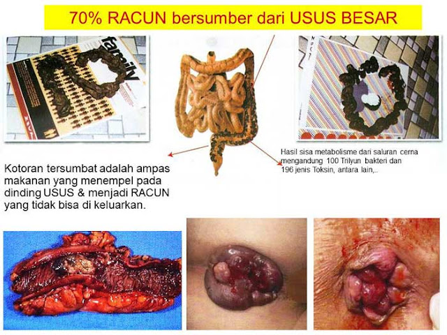 toxin-usus