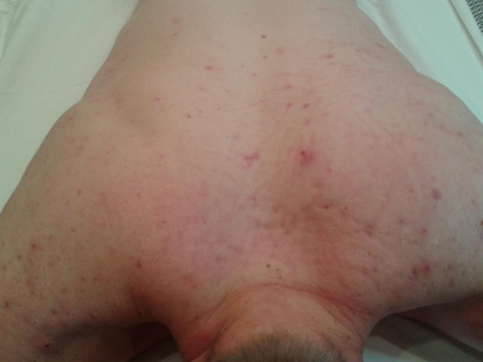 body acne treatments in salt lake city, utah