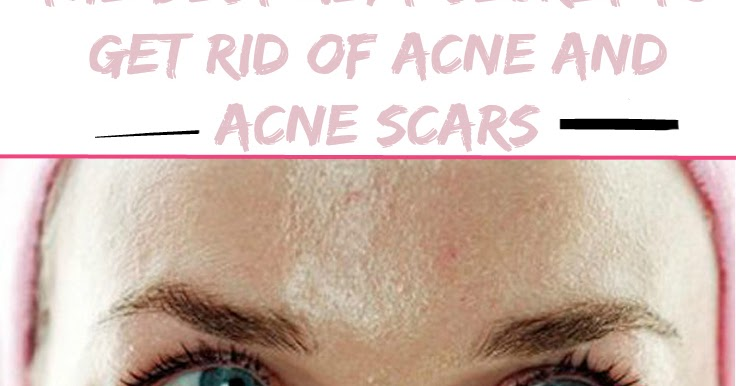 How To Get Rid Of Really Bad Acne Naturally