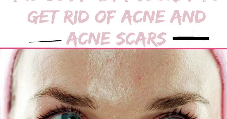 Women's Mag Blog: The Best Kept Secret To Get Rid Of Acne