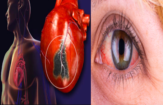 Red Eyes Could Be a Dangerous Sign That You Have a Heart Problem