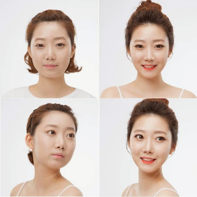 Foto Wajah Tirus Korea Cantik Simetris Prosedur V Shape