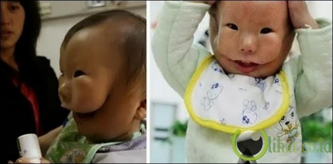 Kangkang, bocah dengan dua wajah