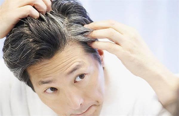 अगर आपके बाल उम्र से पहले सफ़ेद हो रहें हैं