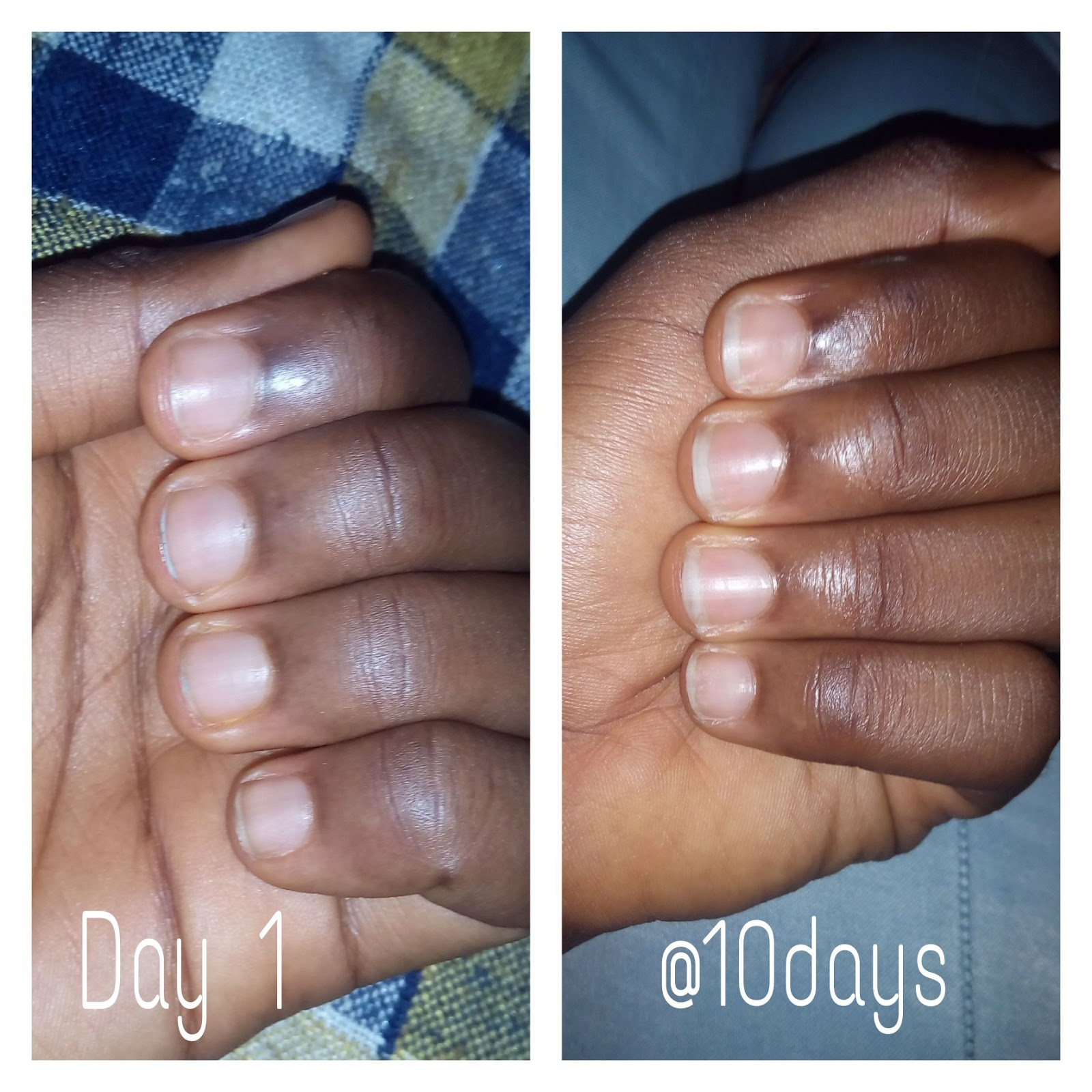 My nails after growing 6 month 6
