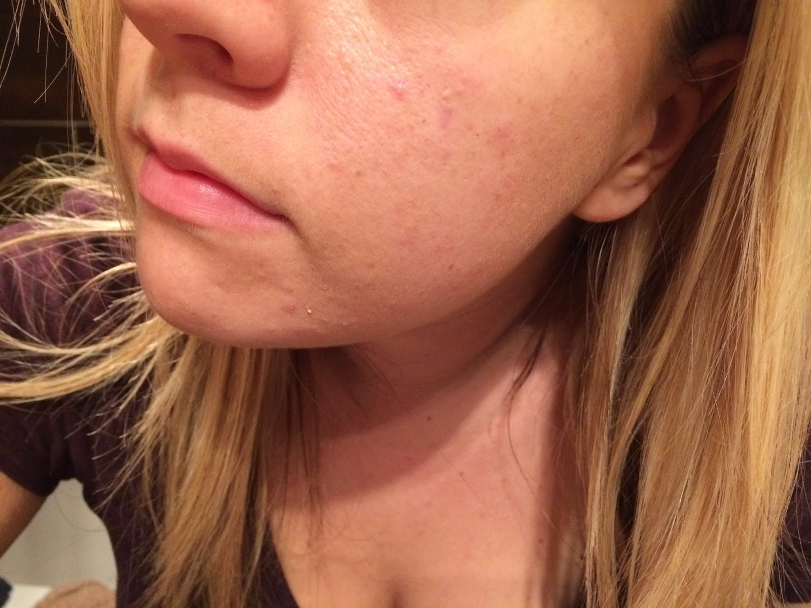 skin-that-had-recovered-from-acne