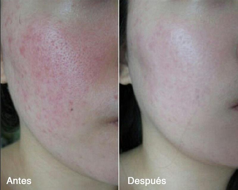 La crema de belleza contra la pigmentación las revocaciones