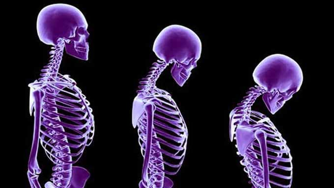 An Introduction of The Bone Cancer and Its Types, Diagnosis as Well as Treatments