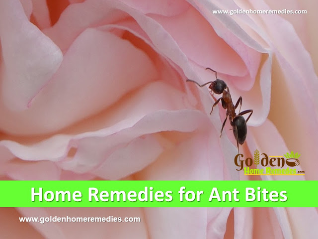 How to Get Rid Of Ant Bites, Home Remedies For Ant Bites, Ant Bite Relief, Ant Bites Treatment, How To Treat Ant Bites Fast, How To Cure Ant Bites and stings, pest control, Ant Bites Home Remedies, Ant Bite Remedies, Remedies For Ant Bites, Cure Ant Bites, Treatment For Ant Bites, Best Ant Bites Treatment, How To Get Relief From Ant Bites, Relief From Ant Bites, How To Get Rid Of Ant Bites Fast,