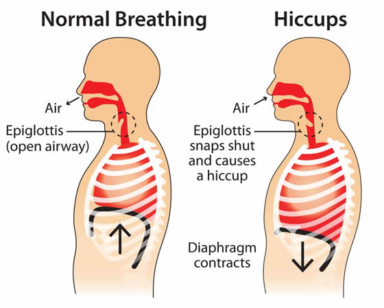 Hiccups diagram