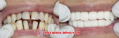 3 lý do nên bọc sứ thay vì niềng răng -5