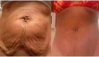 7 φυσικοί τρόποι για να σφίξει το δέρμα μετά από μεγάλη απώλεια βάρους