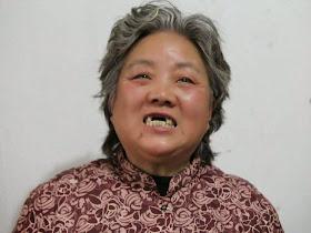 Shen Lixiu, 58, teve arrancados os dentes com socos em 'campo de re-educação pelo trabalho'