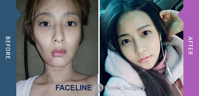 attitude towards to plastic surgery essay The new attitudes to plastic surgery they do stand in the way of the new popular belief that plastic surgery is slowly becoming a normal part of our age.