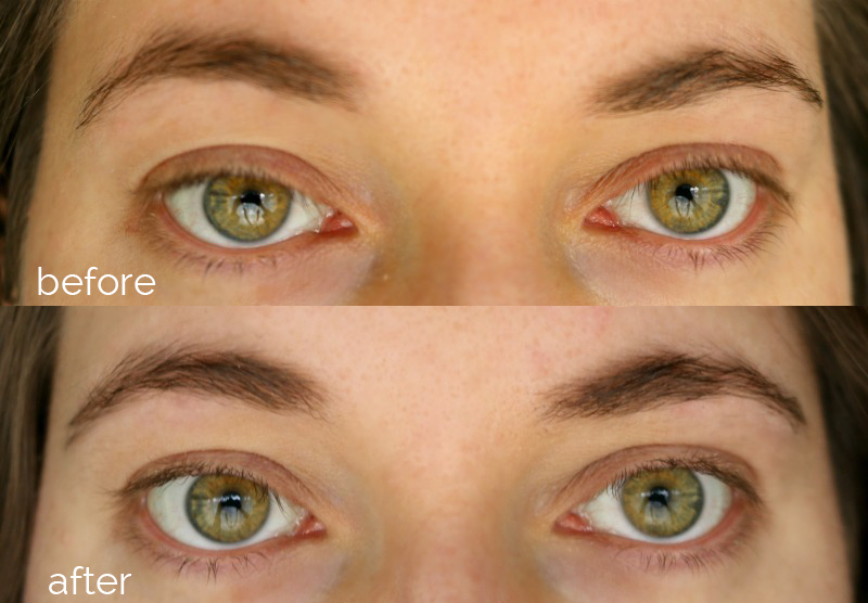 RapidBrow Before After