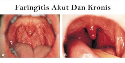 http://www.pusatmedik.org/2016/06/pengertian-definisi-penyebab-dan-pengobatan-serta-gejala-faringitis-akut-menurut-ilmu-kedokteran.html