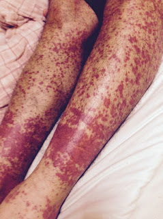 The patient has severe HIV rash on the legs images of hiv rash